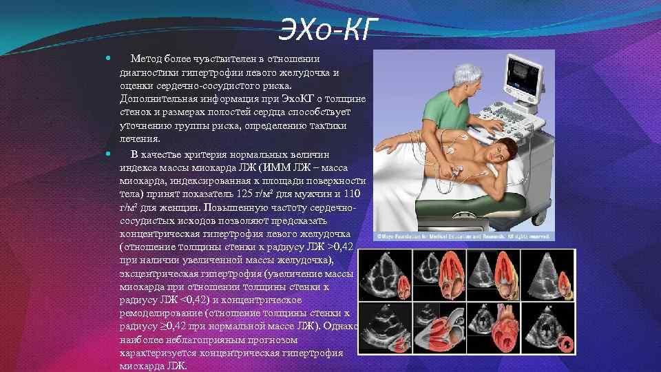 ЭХо-КГ Метод более чувствителен в отношении диагностики гипертрофии левого желудочка и оценки сердечно-сосудистого риска.
