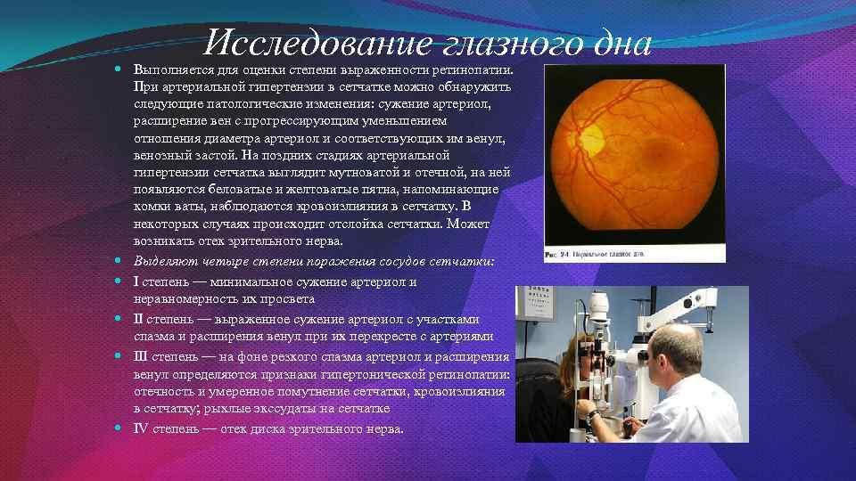 Исследование глазного дна Выполняется для оценки степени выраженности ретинопатии. При артериальной гипертензии в сетчатке