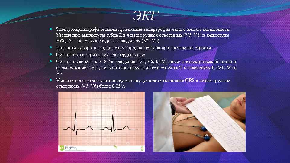 ЭКГ Электрокардиографическими признаками гипертрофии левого желудочка являются: Увеличение амплитуды зубца R в левых грудных