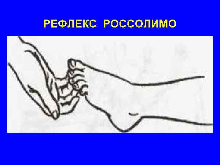 РЕФЛЕКС РОССОЛИМО