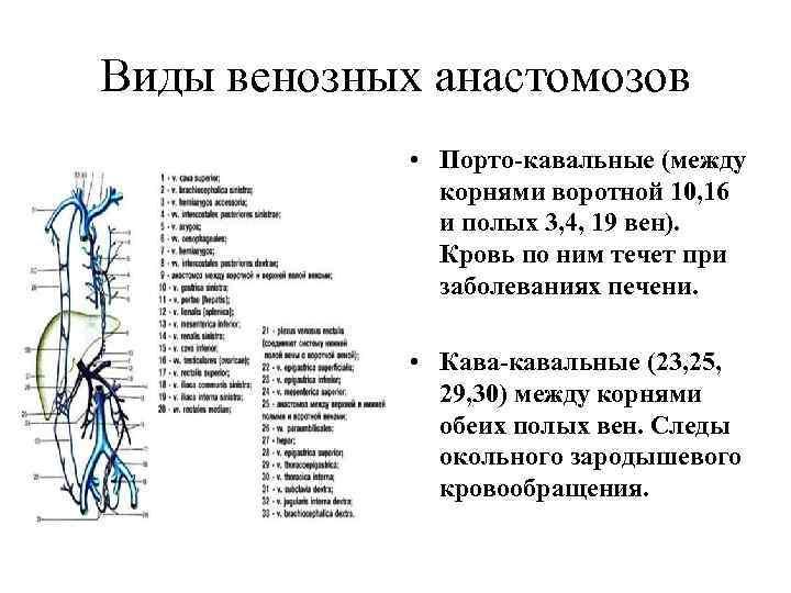Виды венозных анастомозов • Порто-кавальные (между корнями воротной 10, 16 и полых 3, 4,