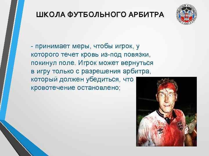 ШКОЛА ФУТБОЛЬНОГО АРБИТРА - принимает меры, чтобы игрок, у которого течет кровь из-под повязки,