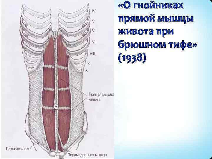 «О гнойниках прямой мышцы живота при брюшном тифе» (1938)