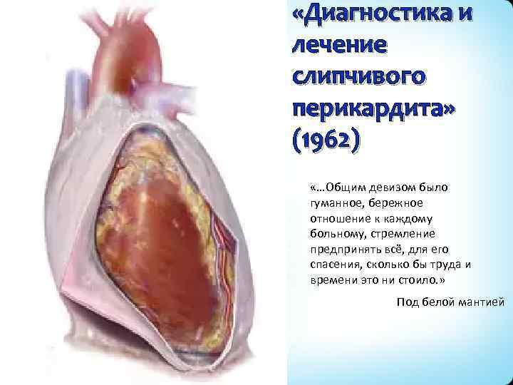 «Диагностика и лечение слипчивого перикардита» (1962) «…Общим девизом было гуманное, бережное отношение к