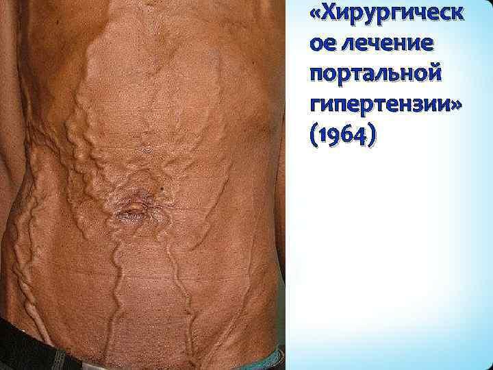 «Хирургическ ое лечение портальной гипертензии» (1964)