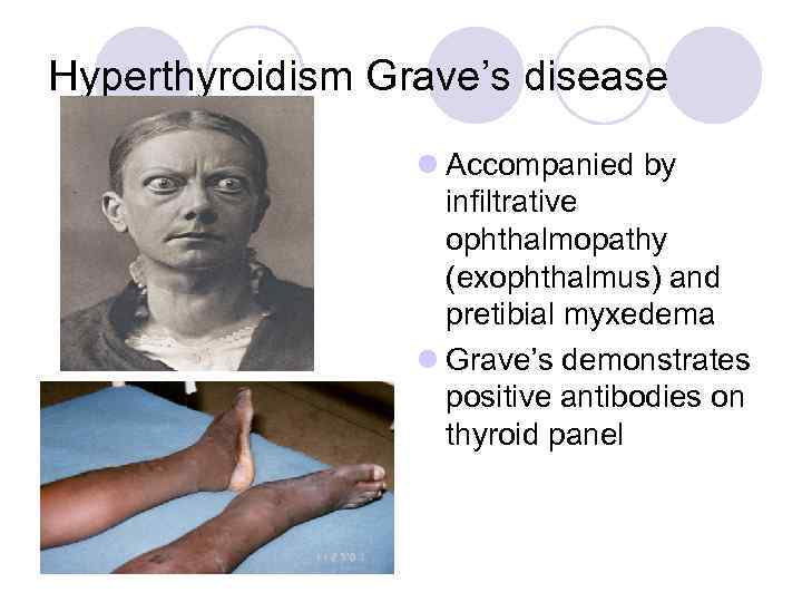 Hyperthyroidism Grave's disease l Accompanied by infiltrative ophthalmopathy (exophthalmus) and pretibial myxedema l Grave's