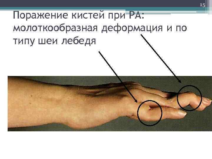 15 Поражение кистей при РА: молоткообразная деформация и по типу шеи лебедя