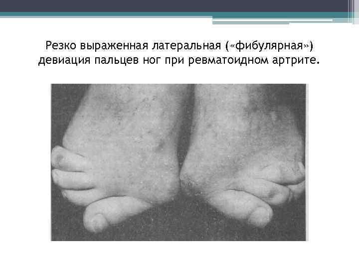 Резко выраженная латеральная ( «фибулярная» ) девиация пальцев ног при ревматоидном артрите.