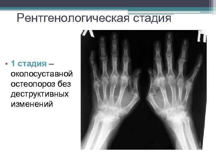 Рентгенологическая стадия • 1 стадия – околосуставной остеопороз без деструктивных изменений