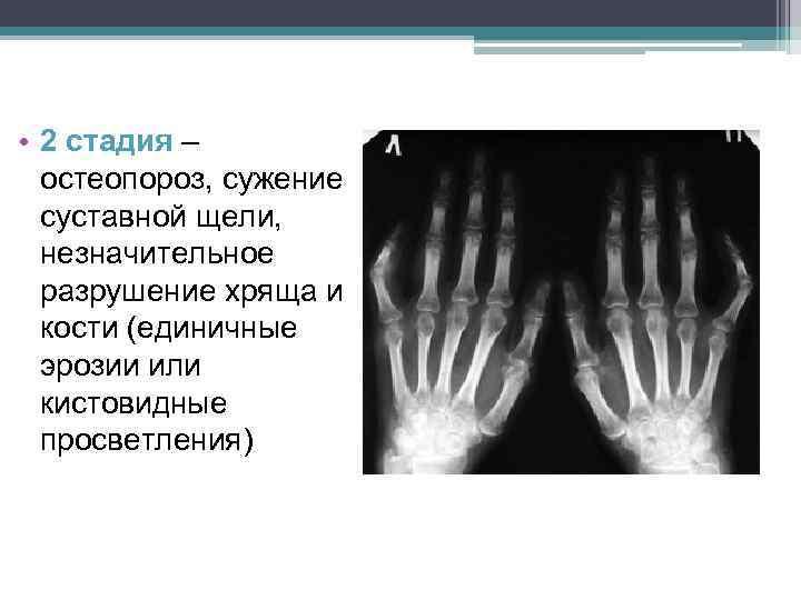 • 2 стадия – остеопороз, сужение суставной щели, незначительное разрушение хряща и кости