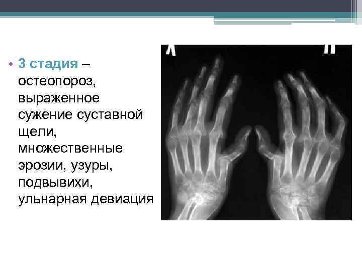 • 3 стадия – остеопороз, выраженное сужение суставной щели, множественные эрозии, узуры, подвывихи,