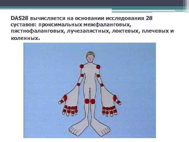 DAS 28 вычисляется на основании исследования 28 суставов: проксимальных межфаланговых, пястнофаланговых, лучезапястных, локтевых, плечевых