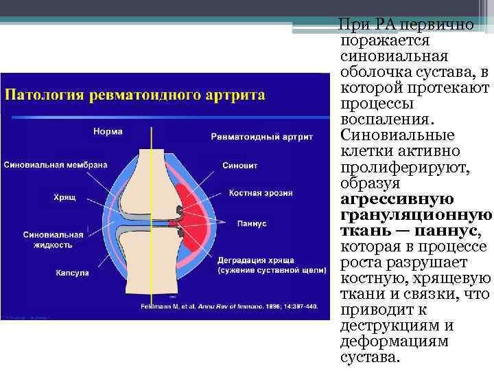 При РА первично поражается синовиальная оболочка сустава, в которой протекают процессы воспаления. Синовиальные