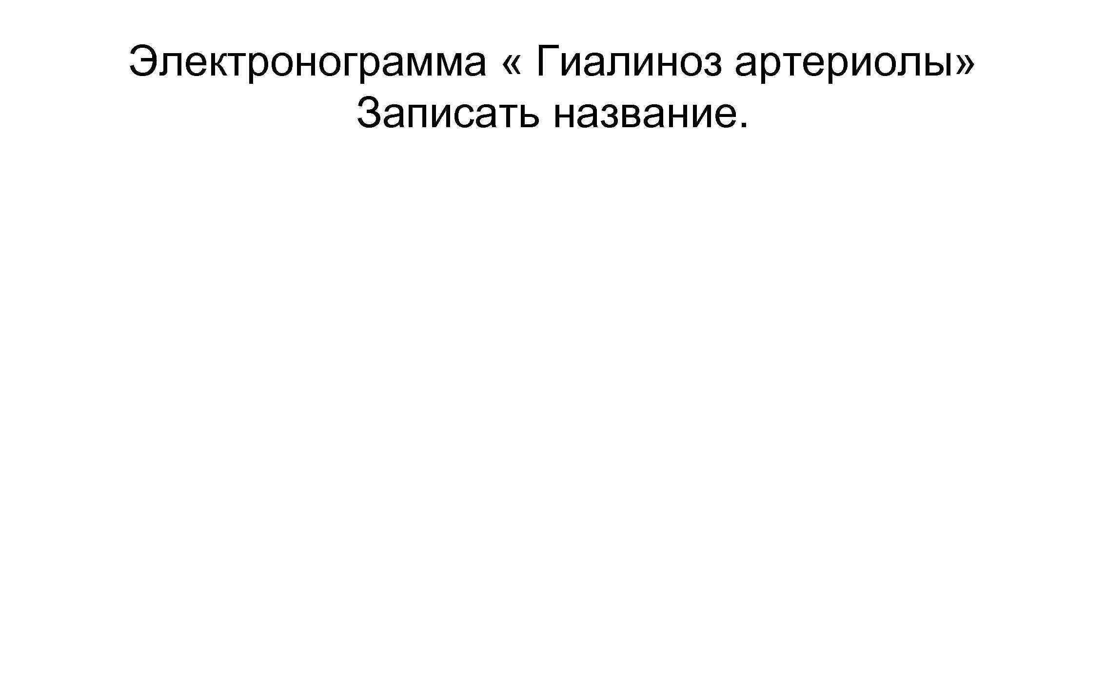 Электронограмма « Гиалиноз артериолы» Записать название.