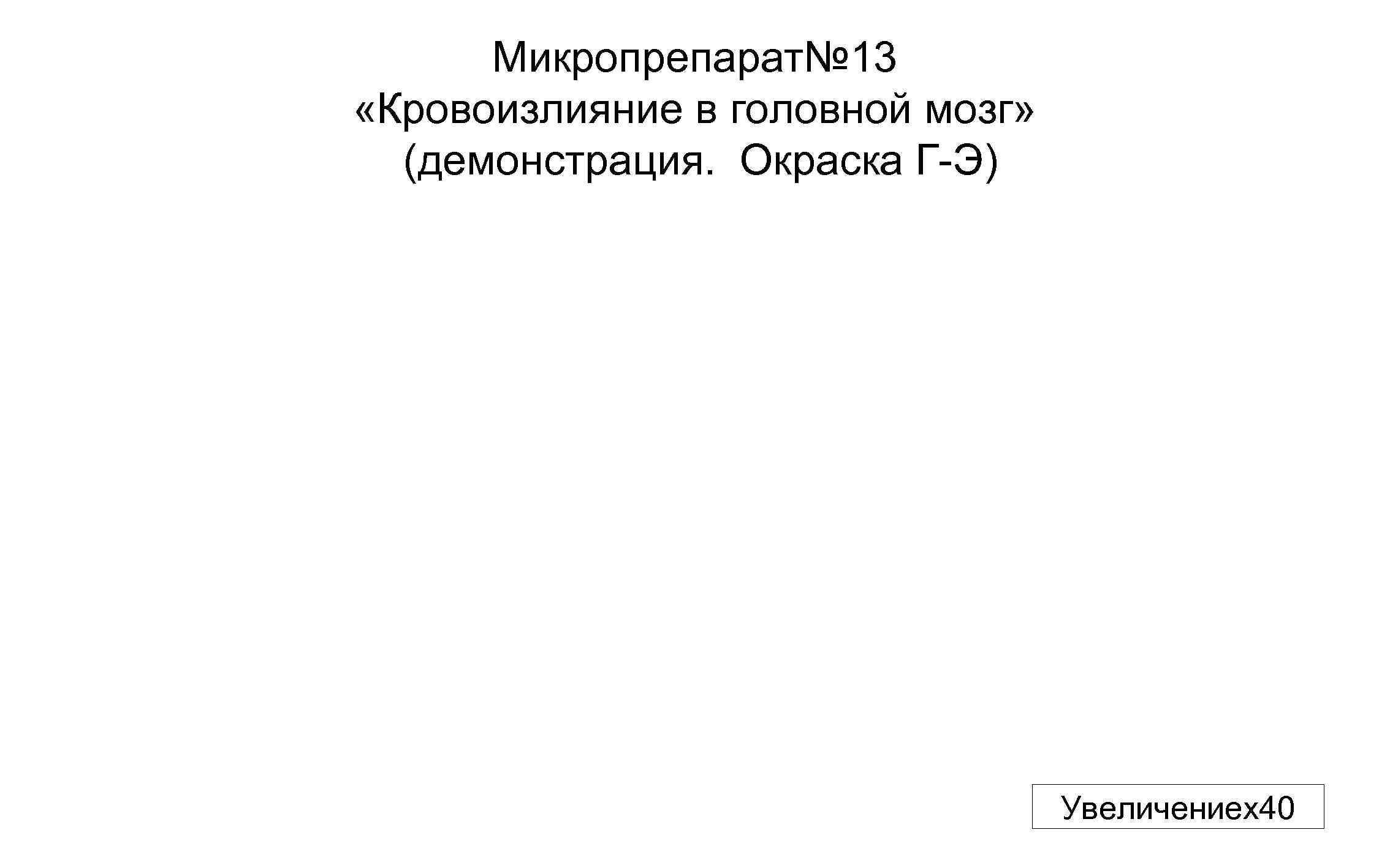 Микропрепарат№ 13 «Кровоизлияние в головной мозг» (демонстрация. Окраска Г-Э) Увеличениех40