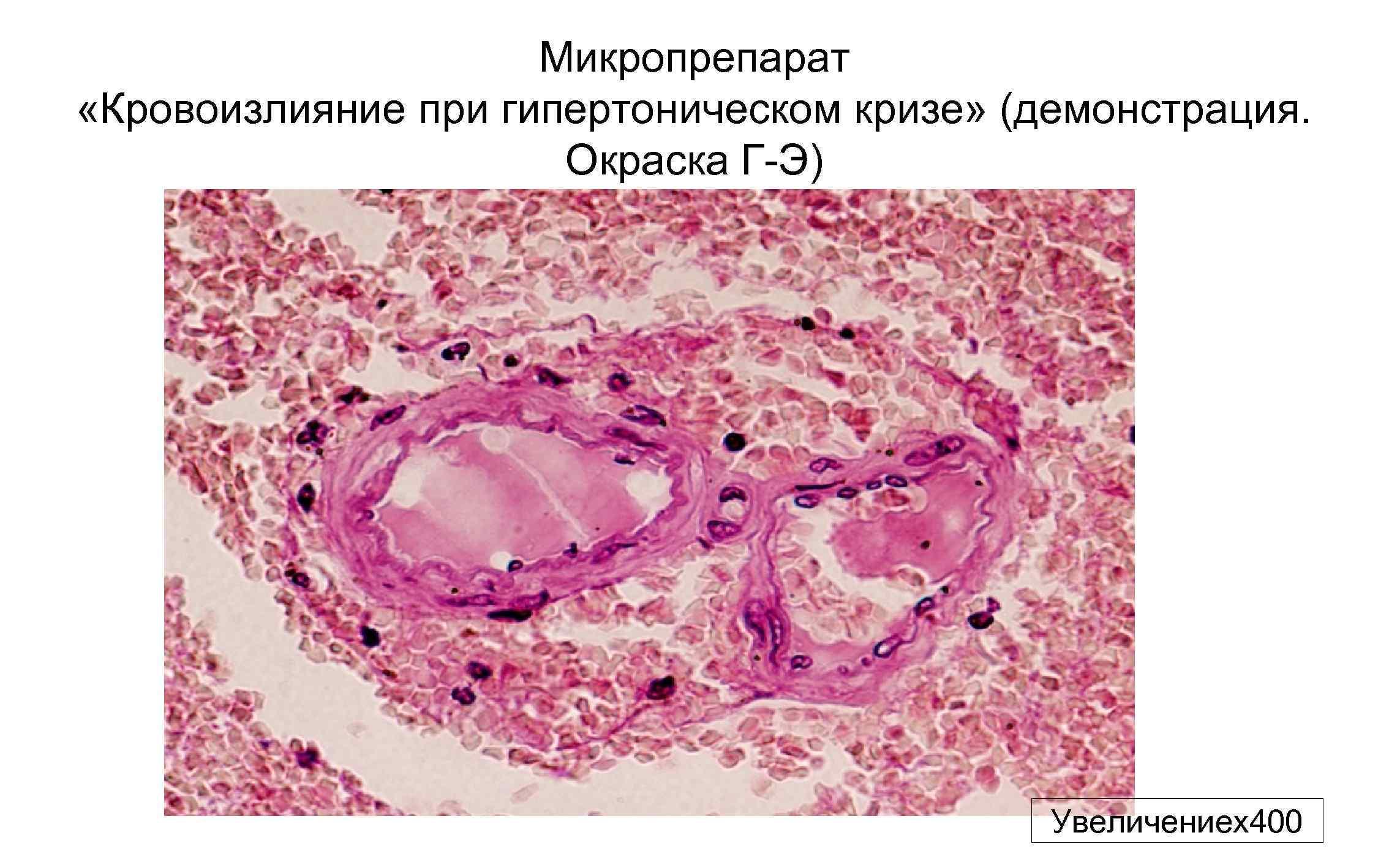 Микропрепарат «Кровоизлияние при гипертоническом кризе» (демонстрация. Окраска Г-Э) Увеличениех400