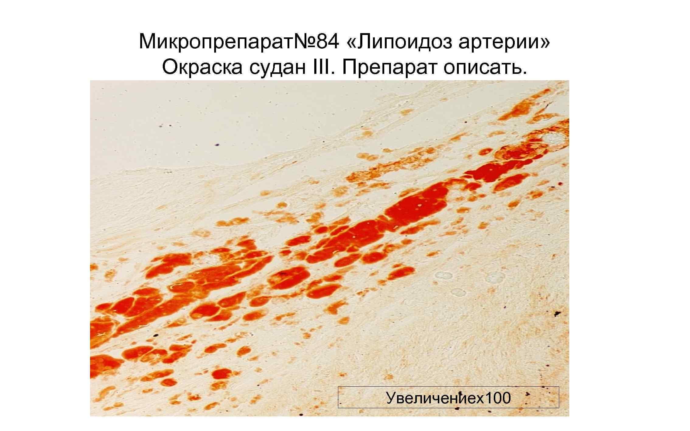 Микропрепарат№ 84 «Липоидоз артерии» Окраска судан III. Препарат описать. Увеличениех100