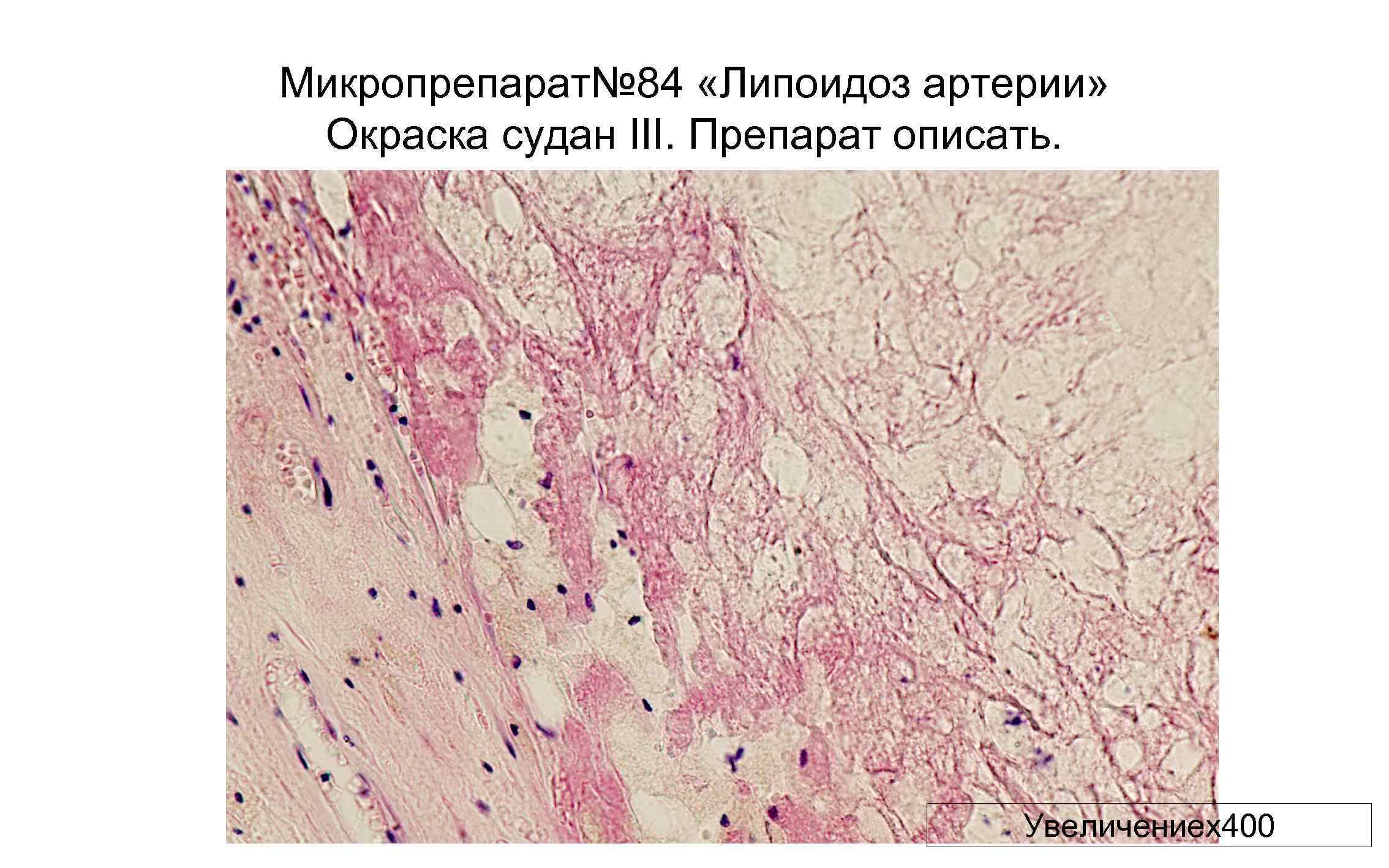Микропрепарат№ 84 «Липоидоз артерии» Окраска судан III. Препарат описать. Увеличениех400