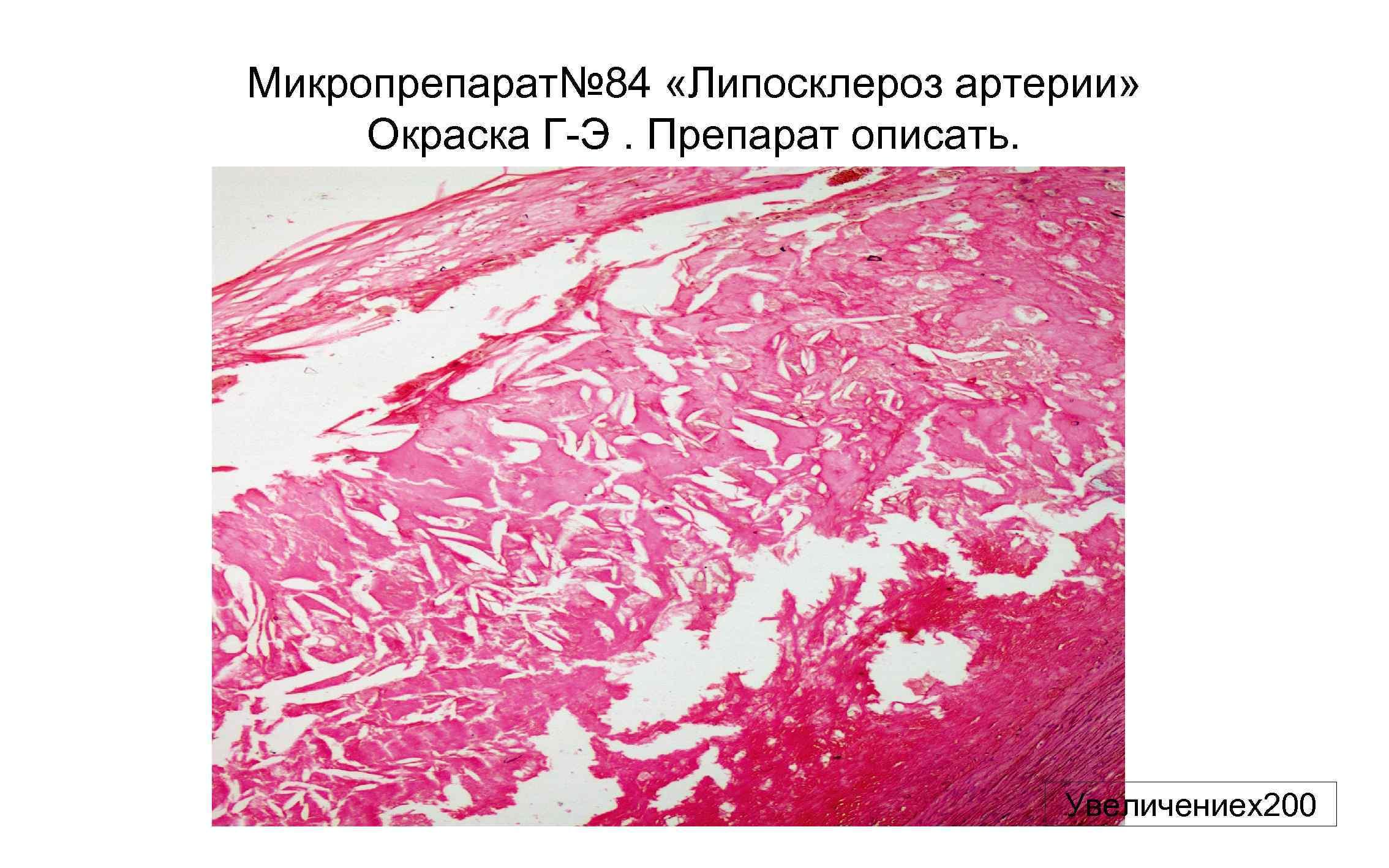 Микропрепарат№ 84 «Липосклероз артерии» Окраска Г-Э. Препарат описать. Увеличениех200