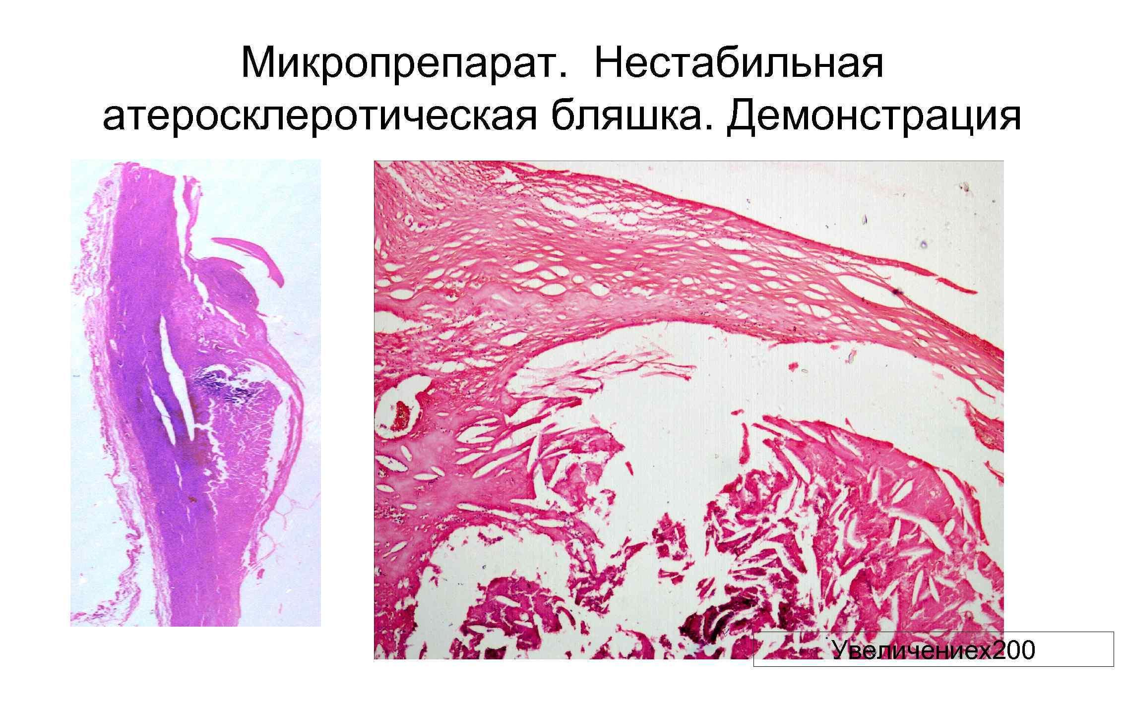 Микропрепарат. Нестабильная атеросклеротическая бляшка. Демонстрация Увеличениех200