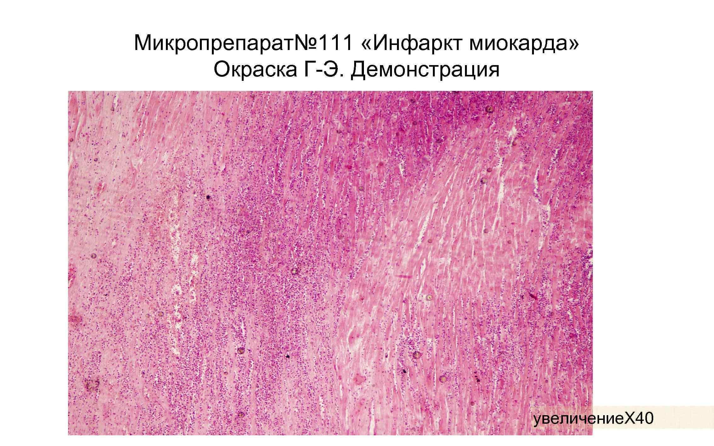 Микропрепарат№ 111 «Инфаркт миокарда» Окраска Г-Э. Демонстрация увеличение. Х 40