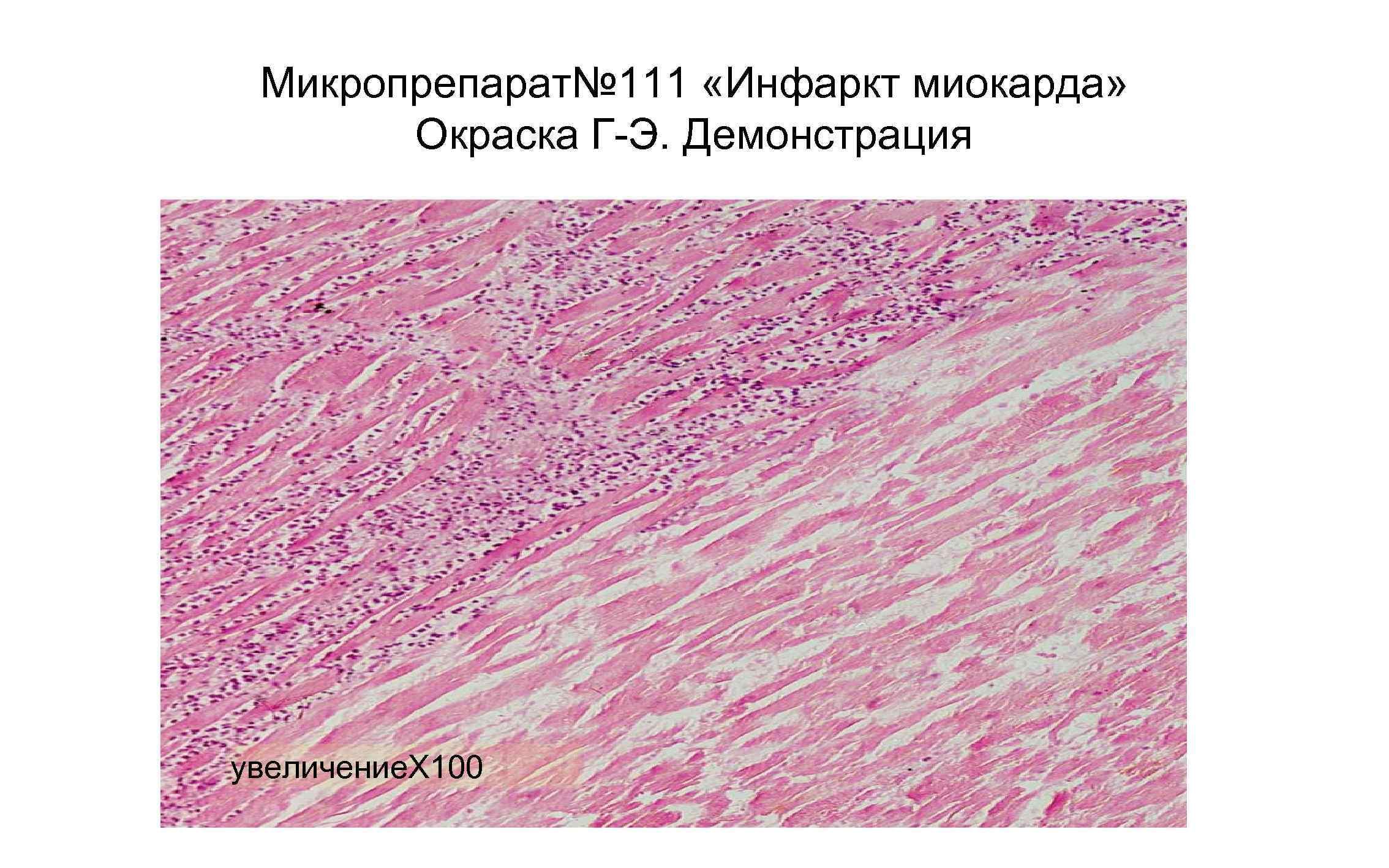 Микропрепарат№ 111 «Инфаркт миокарда» Окраска Г-Э. Демонстрация увеличение. Х 100