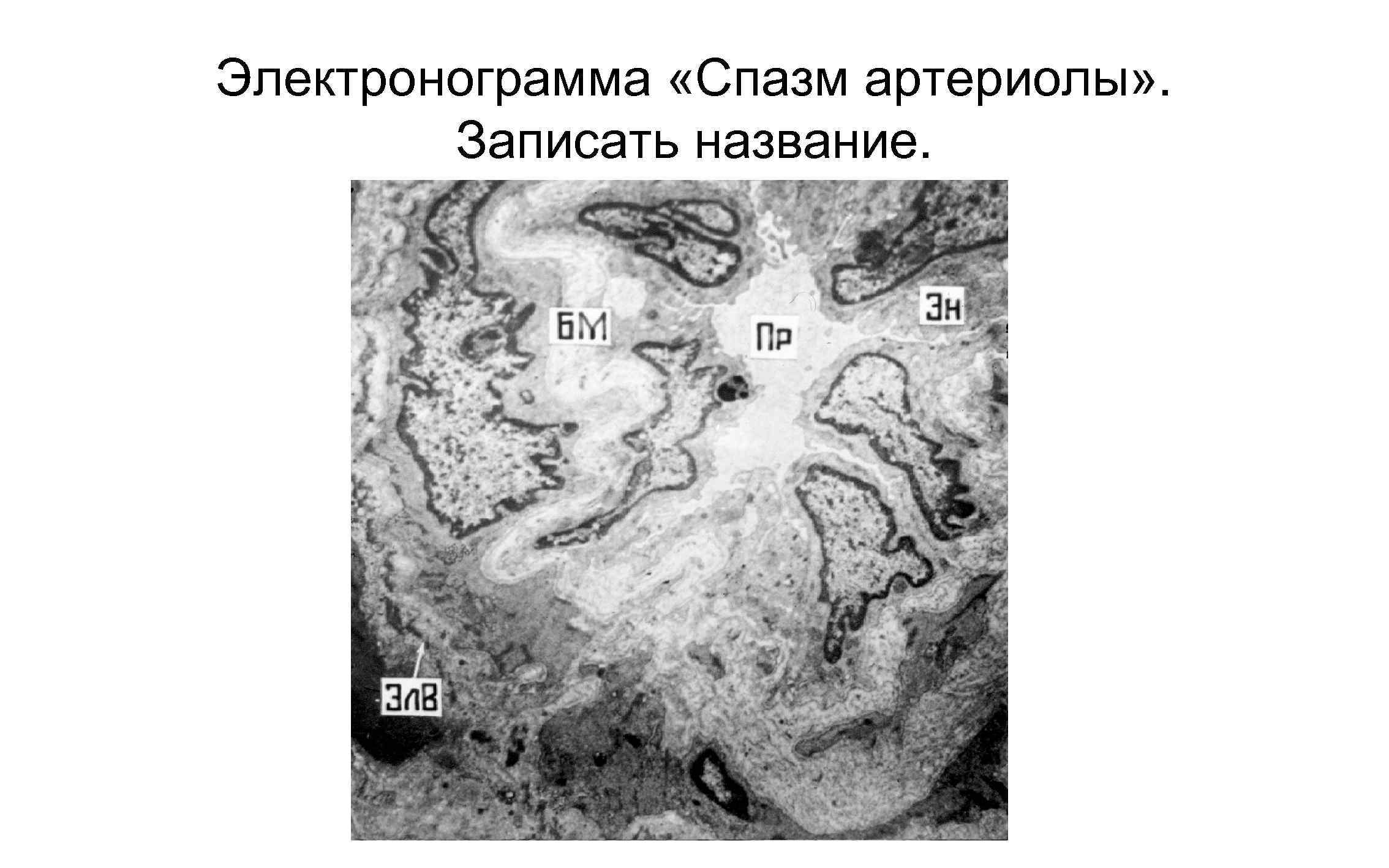 Электронограмма «Спазм артериолы» . Записать название.