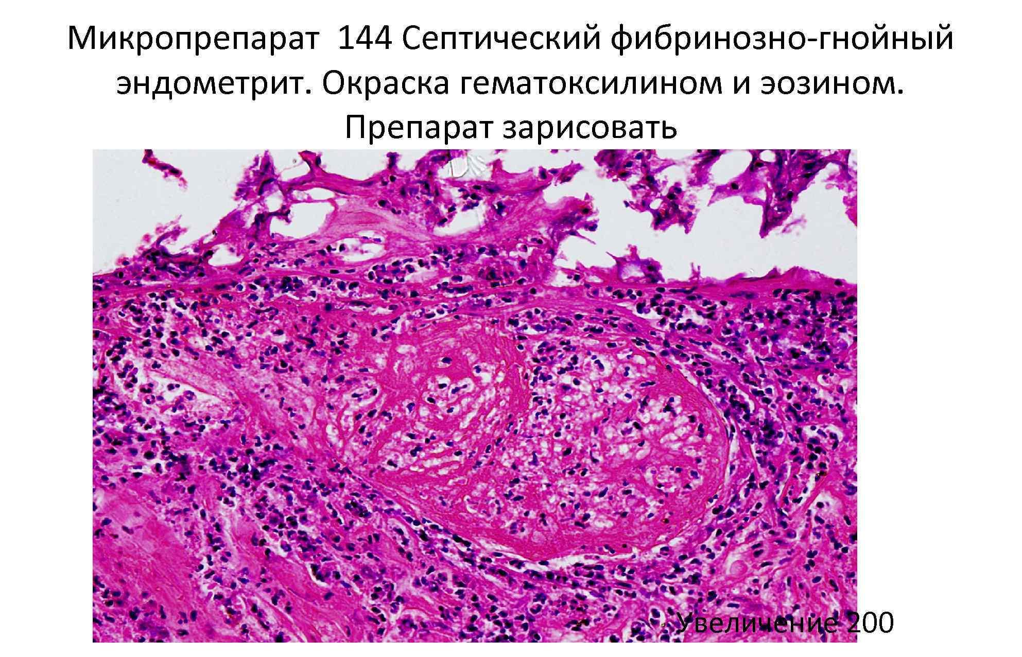 Микропрепарат 144 Септический фибринозно-гнойный эндометрит. Окраска гематоксилином и эозином. Препарат зарисовать Увеличение 200