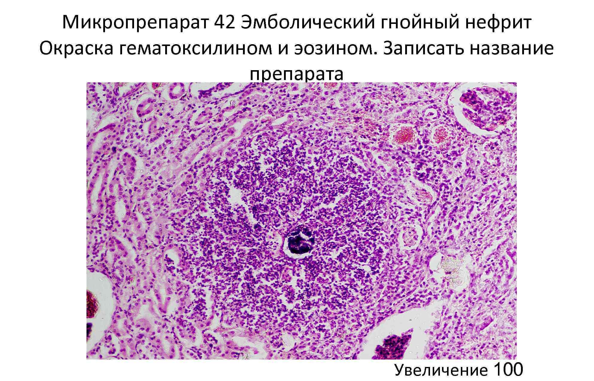 Микропрепарат 42 Эмболический гнойный нефрит Окраска гематоксилином и эозином. Записать название препарата Увеличение 100