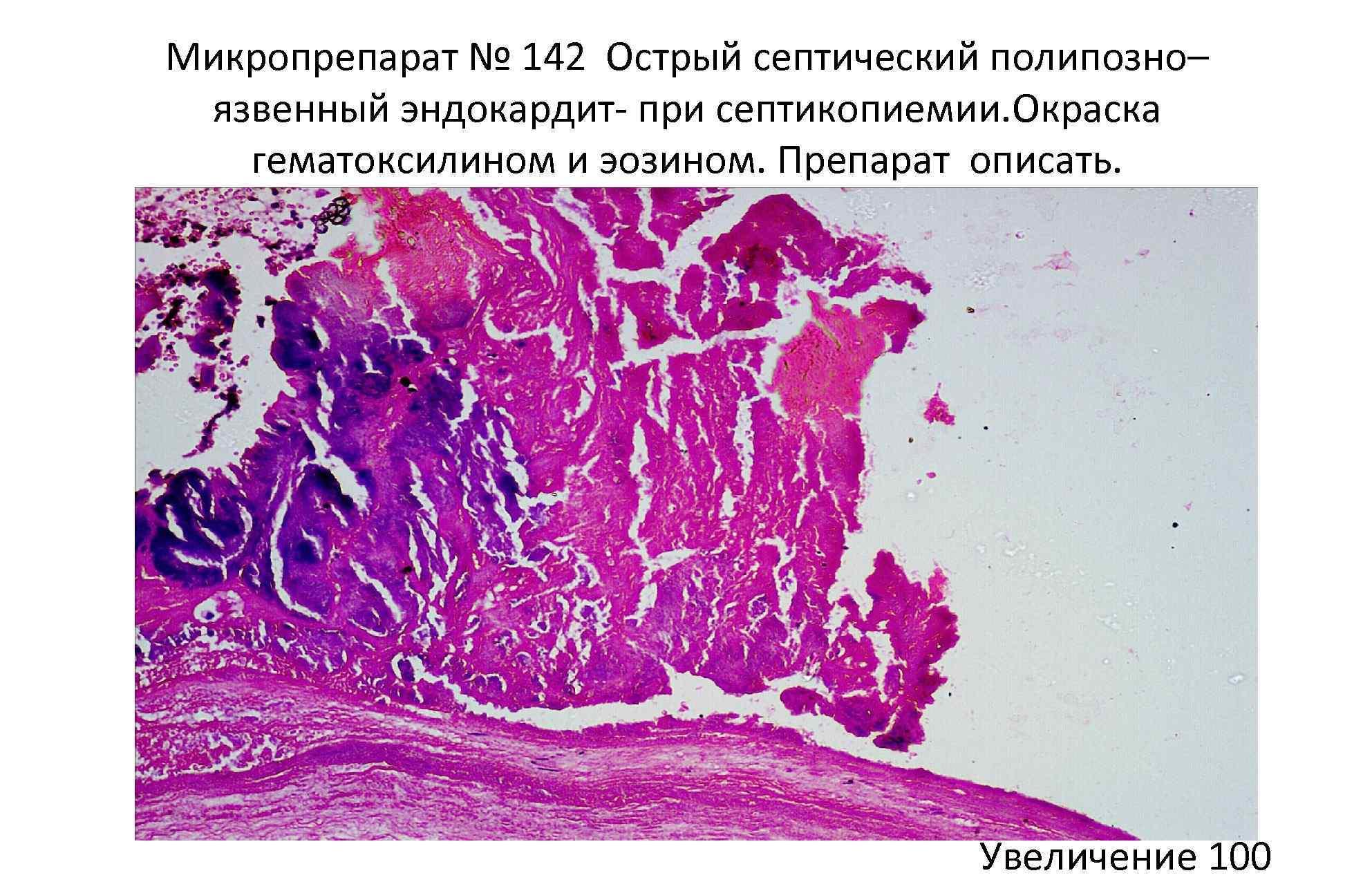 Микропрепарат № 142 Острый септический полипозно– язвенный эндокардит- при септикопиемии. Окраска гематоксилином и эозином.