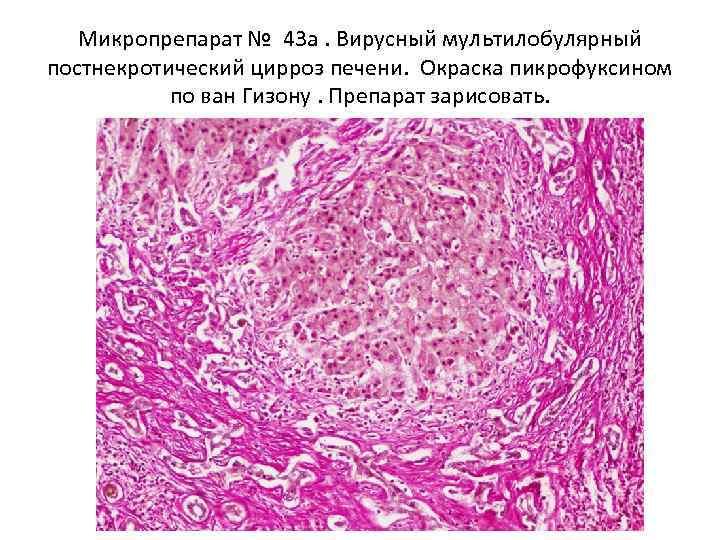Микропрепарат № 43 а. Вирусный мультилобулярный постнекротический цирроз печени. Окраска пикрофуксином по ван Гизону.