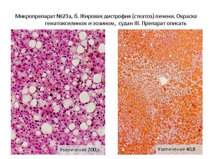Микропрепарат № 23 а, б. Жировая дистрофия (стеатоз) печени. Окраска гематоксилином и эозином, судан