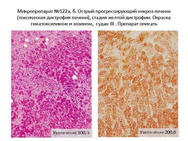 Микропрепарат № 122 а, б. Острый прогрессирующий некроз печени (токсическая дистрофия печени), стадия желтой