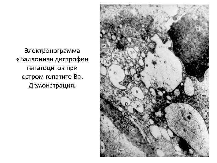 Электронограмма «Баллонная дистрофия гепатоцитов при остром гепатите В» . Демонстрация.