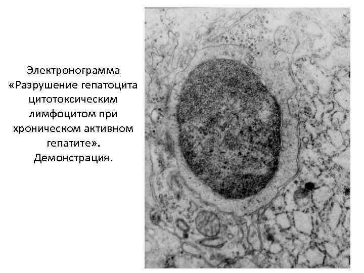Электронограмма «Разрушение гепатоцита цитотоксическим лимфоцитом при хроническом активном гепатите» . Демонстрация.