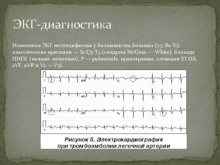 ЭКГ-диагностика Изменения ЭКГ неспецифичны у большинства больных (75– 80 %), классические признаки — S