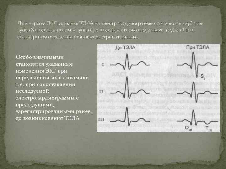 При первом ЭКГ варианте ТЭЛА на электрокардиограмме появляются глубокие зубец S в I стандартном
