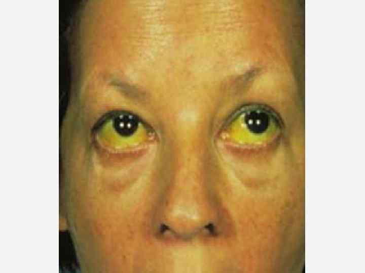 Сестринский уход при хронических гепатитах и циррозах печени
