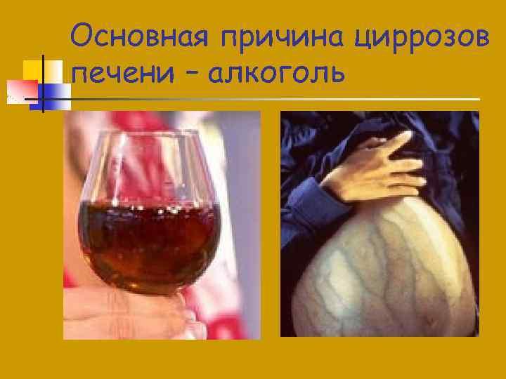 Основная причина циррозов печени – алкоголь