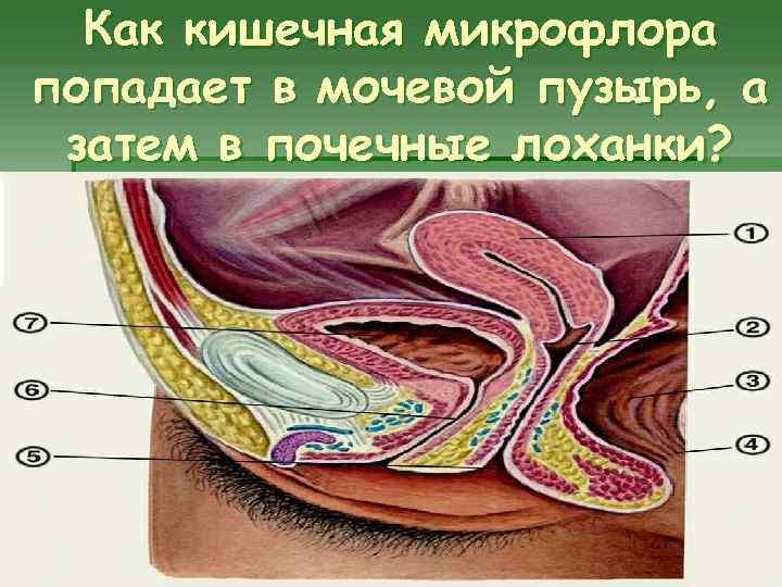 Как кишечная микрофлора попадает в мочевой пузырь, а затем в почечные лоханки?