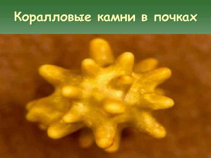Коралловые камни в почках