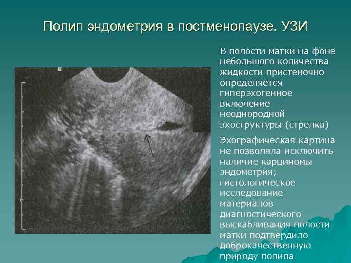Полип эндометрия в постменопаузе. УЗИ В полости матки на фоне небольшого количества жидкости пристеночно