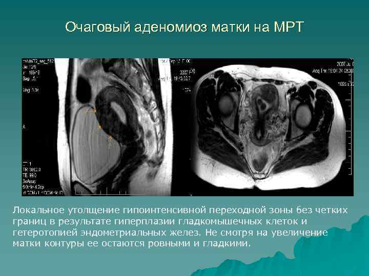 Очаговый аденомиоз матки на МРТ Локальное утолщение гипоинтенсивной переходной зоны без четких границ в