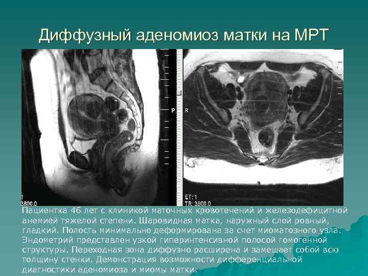 Диффузный аденомиоз матки на МРТ Пациентка 46 лет с клиникой маточных кровотечений и железодефицитной