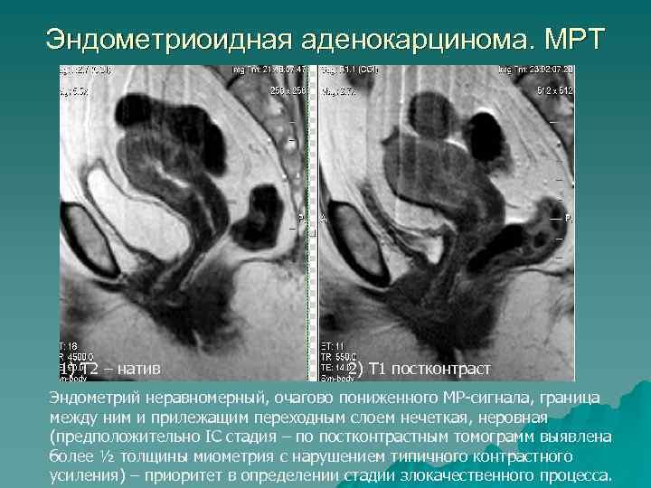 Эндометриоидная аденокарцинома. МРТ 1) Т 2 – натив 2) Т 1 постконтраст Эндометрий неравномерный,