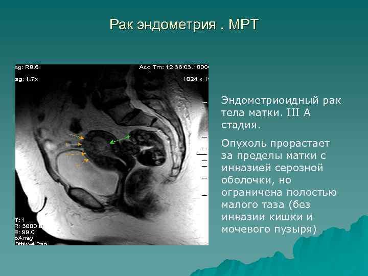 Рак эндометрия. МРТ Эндометриоидный рак тела матки. III А стадия. Опухоль прорастает за пределы