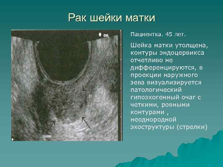Рак шейки матки Пациентка. 45 лет. Шейка матки утолщена, контуры эндоцервикса отчетливо не дифференцируются,