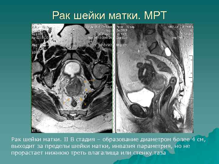 Рак шейки матки. МРТ Рак шейки матки. II В стадия – образование диаметром более