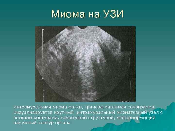 Миома на УЗИ Интрамуральная миома матки, трансвагинальная сонограмма. Визуализируется крупный интрамуральный миоматозный узел с