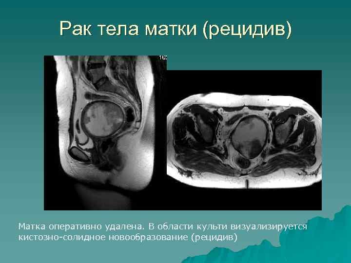 Рак тела матки (рецидив) Матка оперативно удалена. В области культи визуализируется кистозно-солидное новообразование (рецидив)